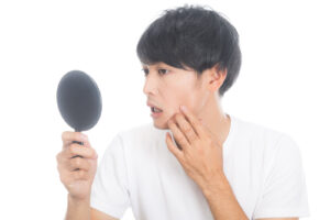 男性が鏡を見て肌荒れを気にする写真